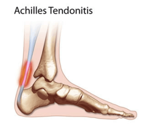 Achilles tendon inflammation happens when the running is incorrectly