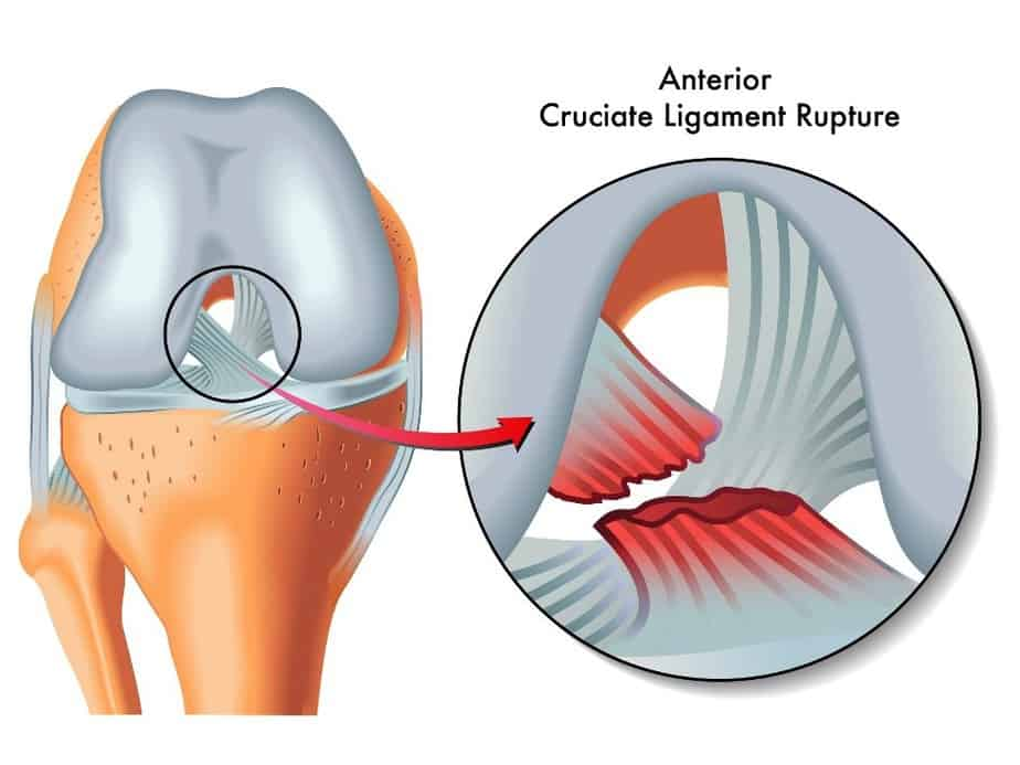 Anterior Ligament Cruciate or rupture happens when runner suddenly change the direction