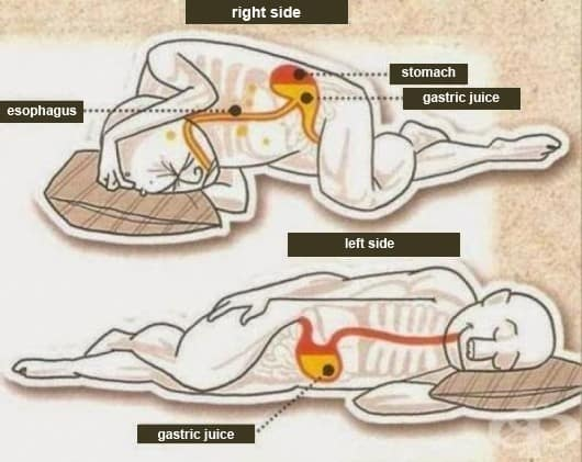 lay on your left side after overeating, stomach and esophagus position