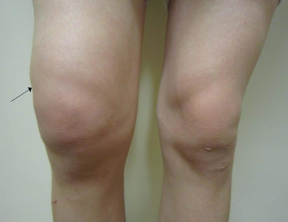 Meniscus Tear is appearing to the people who's running to much