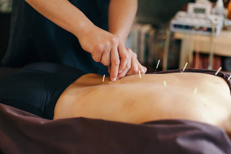 A Medical acupuncture treatmant.