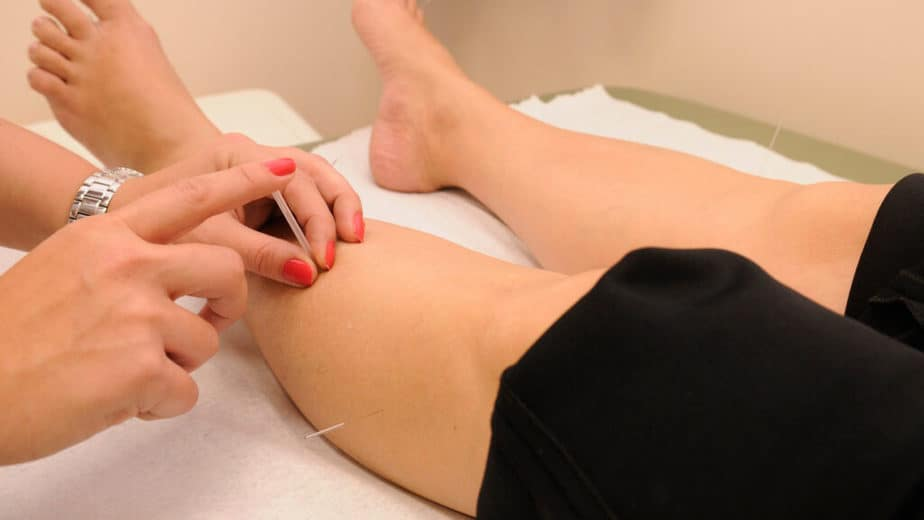 A Medical treatment with acupuncture, on painful.