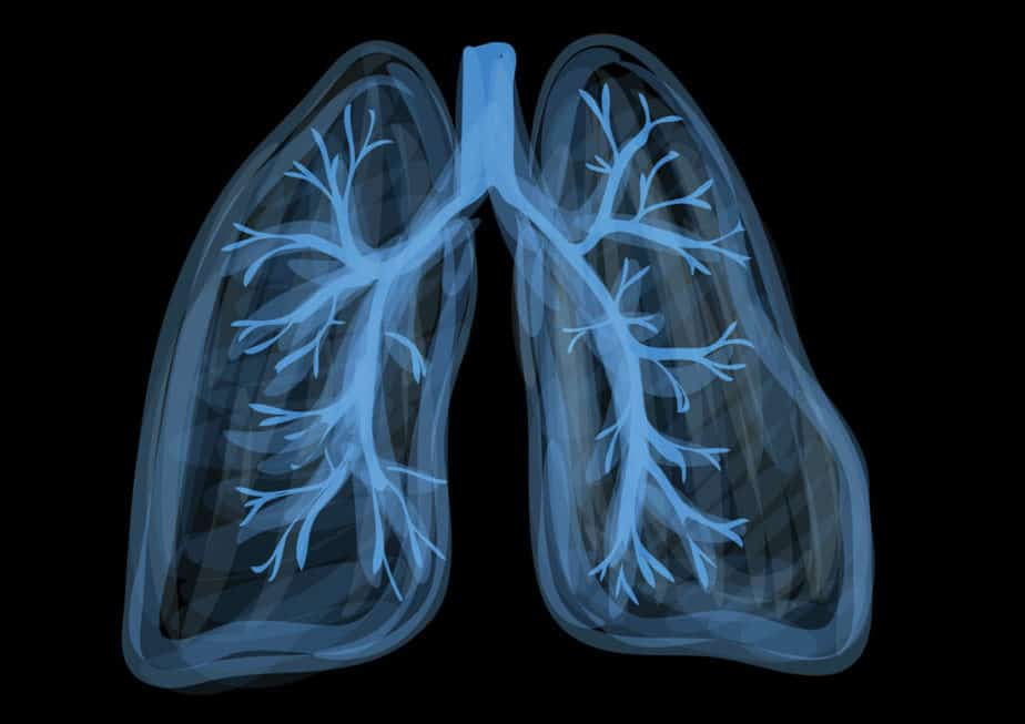 A man's lungs on this picture.