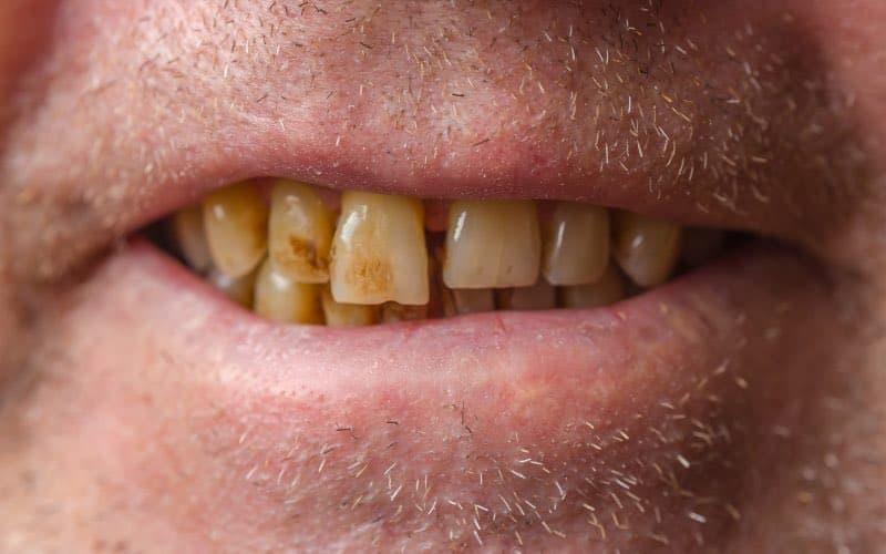 An example of bad oral hygiene, bad ugly teeth