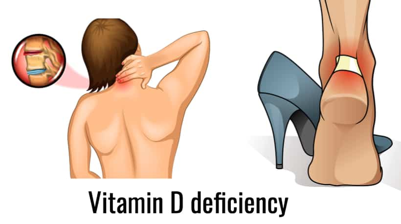 An example of deficiency of vitamin D.