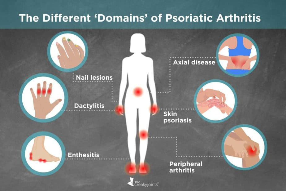 facts about psoriasis where it could be located.