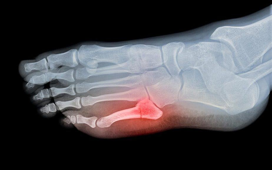 One of sports injuries : fractures.