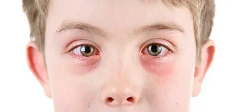 6 Home Remedies Every Parent Should Know About Seasonal Allergies - red eyes.