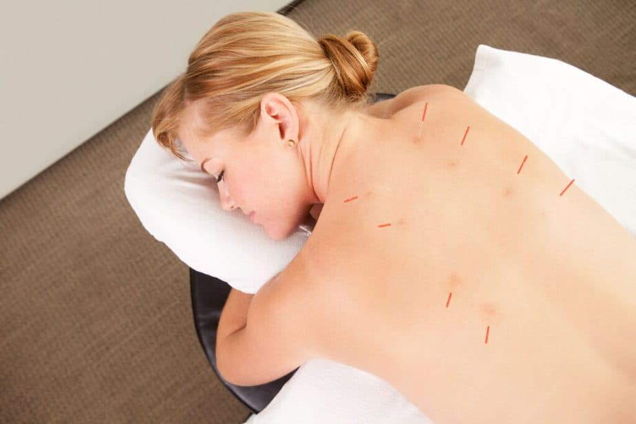 How Acupuncture Helps Cure Many Ailments: Discover The Facts - a girl has an Acupuncture treatment.